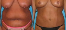 Abdominoplasty 10