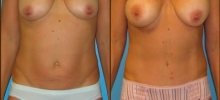 Abdominoplasty 12