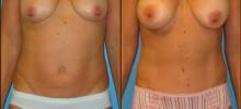 Abdominoplasty 12