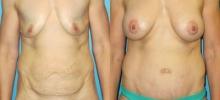 Abdominoplasty 17
