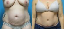 Abdominoplasty 18