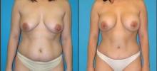 Abdominoplasty 2