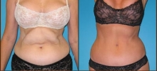 Abdominoplasty 3