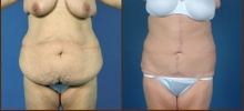 Abdominoplasty 4