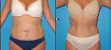 Abdominoplasty 5
