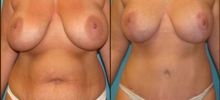 Abdominoplasty 9