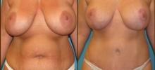 Abdominoplasty 9