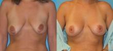 Breast Augmentation w/Saline 1