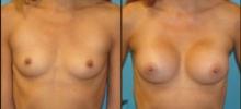 Breast Augmentation w/Saline 2