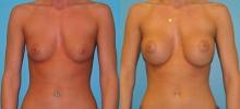 Breast Augmentation w/Saline 3