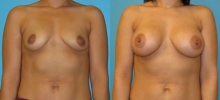 Breast Augmentation w/Saline 4