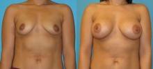 Breast Augmentation w/Saline 4