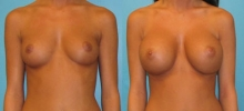 Breast Augmentation w/Saline 5