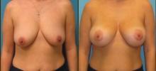 Breast Augmentation w/Saline 6