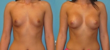Breast Augmentation w/Silicone 2
