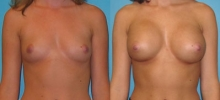 Breast Augmentation w/Silicone 3