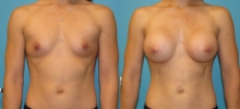 Breast Augmentation w/Silicone 4