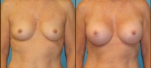 Breast Augmentation w/Silicone 5
