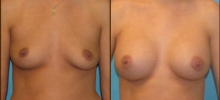 Breast Augmentation w/Silicone 6