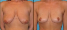 Breast Lift 7