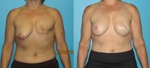 Breast Reconstruction 10