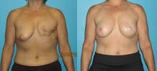 Breast Reconstruction 10