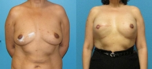 Breast Reconstruction 11