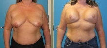 Breast Reconstruction 12
