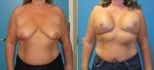 Breast Reconstruction 12