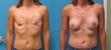 Breast Reconstruction 14
