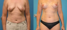 Breast Reconstruction 15