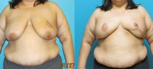Breast Reconstruction 16