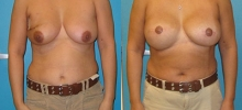 Breast Reconstruction 17