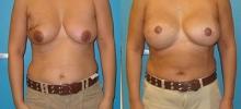 Breast Reconstruction 17