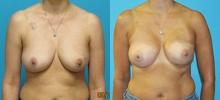 Breast Reconstruction 19