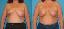 Breast Reconstruction 20