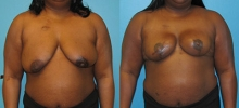 Breast Reconstruction 21