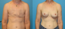 Breast Reconstruction 3
