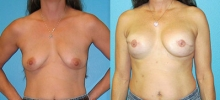Breast Reconstruction 5