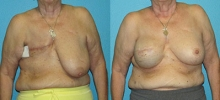 Breast Reconstruction 6