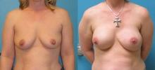 Breast Reconstruction 7