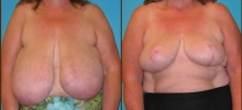 Breast Reduction 10