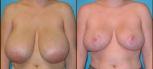 Breast Reduction 11