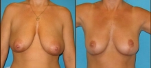 Breast Reduction 12