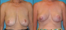 Breast Reduction 13