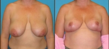 Breast Reduction 9