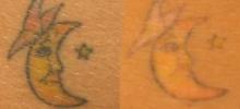 Tattoo Removal 1