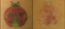 Tattoo Removal 7