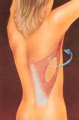 Breast reconstruction 4