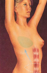 Breast reconstruction 6